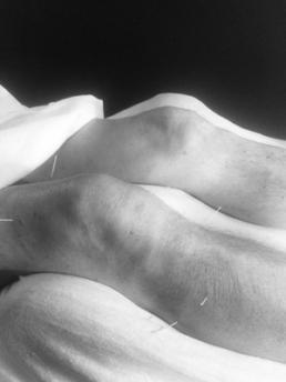 knæproblemer? Blog Dahl Akupunktur